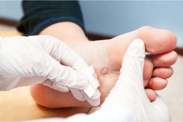 טיפול ביבלת ברגליים